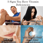 5 Signs You're Vitamin Deficient