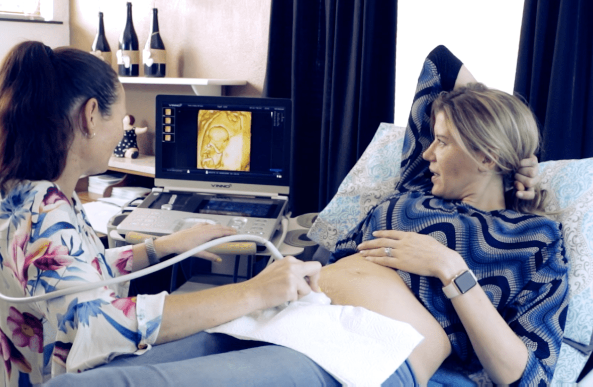 live 2d and 4 ultrasound scan