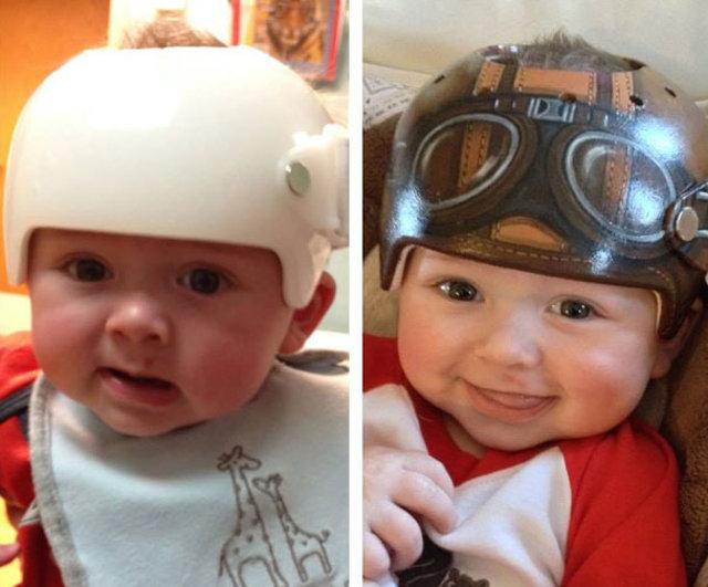 Artist Paints Children's Medical Helmets To Look Cooler