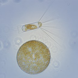 Figure 1. Phytoplankton from Andvord Bay during the FjordEco Research Expedition. Photo by Maria Stenzel.