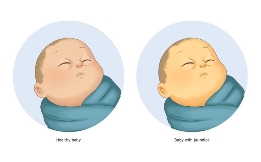 pd005_jaundice_in_newborn_babies_img1_au_v2.large