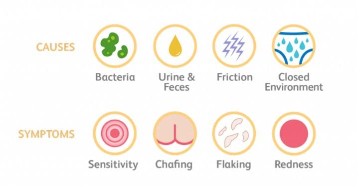 Causes-and-symptoms-of-diaper-rash