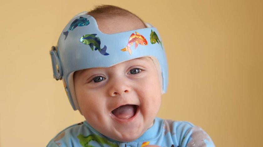 Baby_Plagiocephaly_Helmet