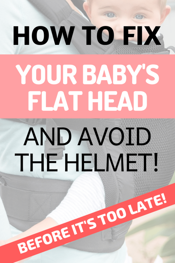 How-to-fix-your-babys-flat-head