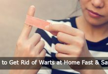 How-to-Get-Rid-of-Warts-at-Home