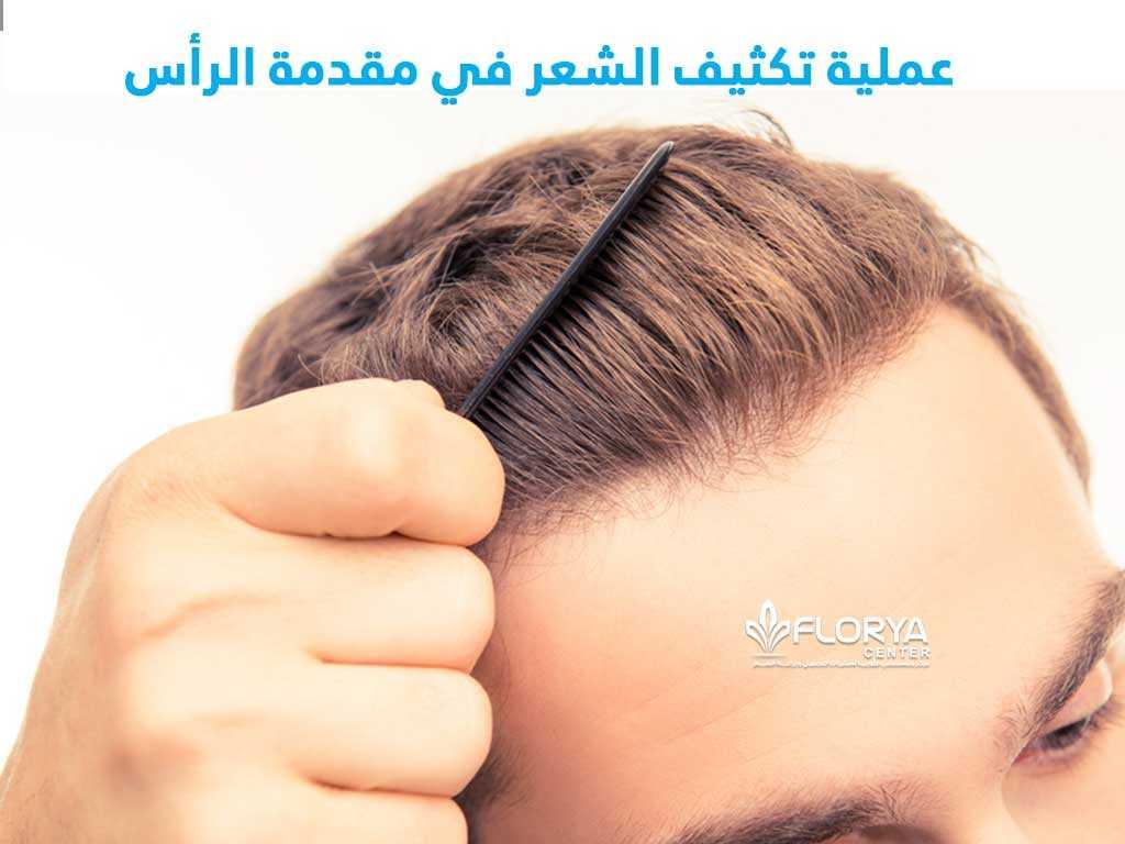 عملية تكثيف الشعر في مقدمة الرأس وكيفية زراعة الشعر في