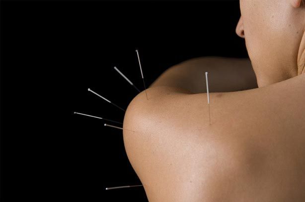 acupuncture bristol