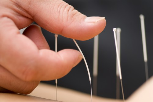 acupuncture-needles-close-up