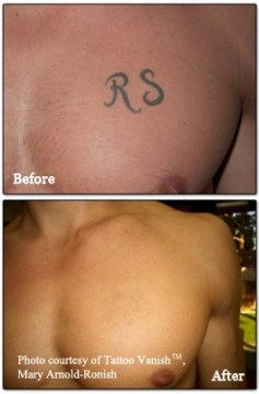 chest tattoo removal
