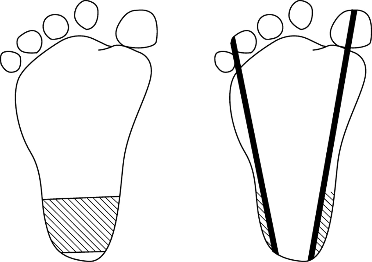 Ultrasound Study Of Heel To Calcaneum Depth In Neonates