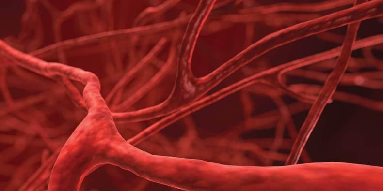 Swelling Of The Blood Vessels