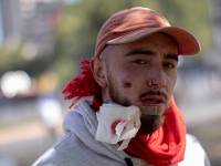 A man with bullet impact on his face during demonstrations in downtown Santiago. Protesters face the police and the army in the city of Santiago, Chile, on October 20, 2019 after 7 days of evasions and protests over the increase in the price of subway tickets, That ended with several dead. President Sebastian Pinera declared a state of emergency and curfew in several cities in Chile (Photo by Pablo Rojas Madariaga/NurPhoto via Getty Images)
