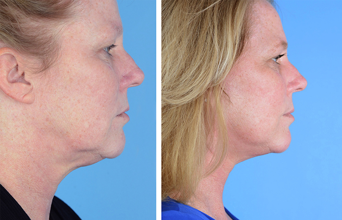 Before and after photos of a woman who had a facelift