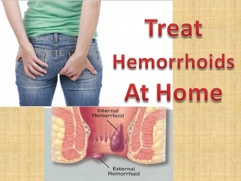 what is hemorrhoids | causes, symptoms, Human Body