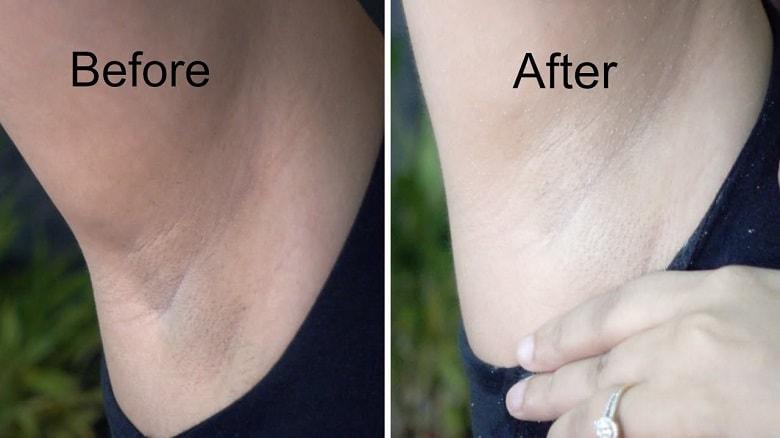 Natural Way To Bleach Arm Hair