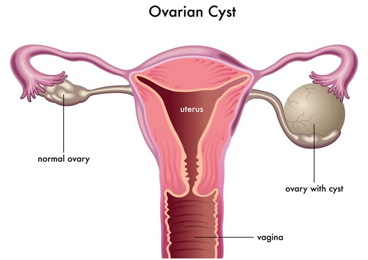Cure Ovarian Cysts Naturally