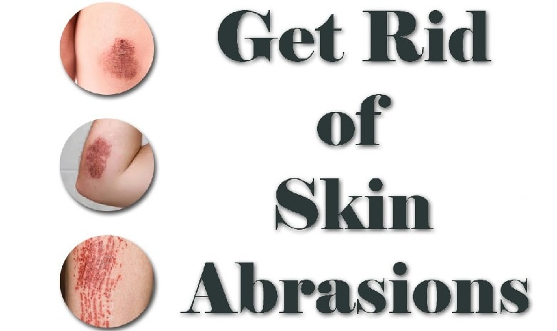 Everyone Has Experienced Skin Wounds Or Abrasions In Their Life An Abrasion Is A Type Of Injuries Injury To The Usually Affects