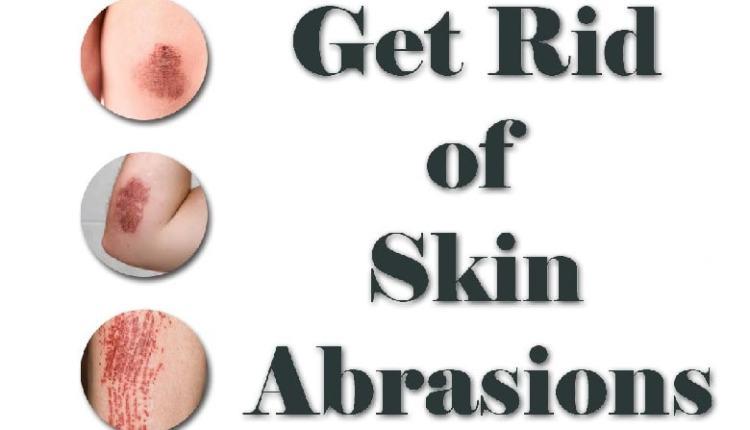 skin abrasions