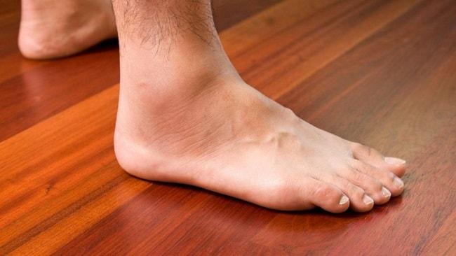 swollen ankles feet
