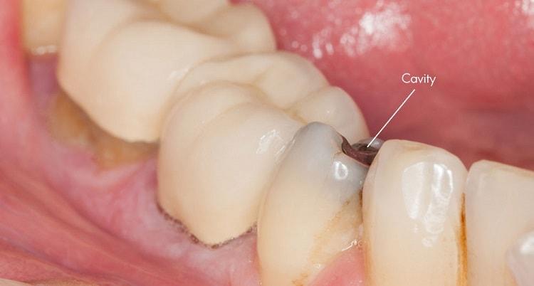 treat cavities naturally