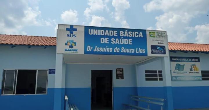 UBSAluminio1 (Copy)