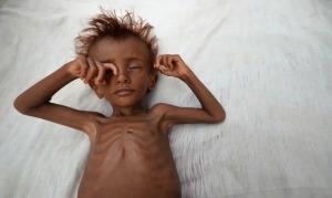 ONU alerta para fome de 'proporções bíblicas' devido à pandemia de coronavírus