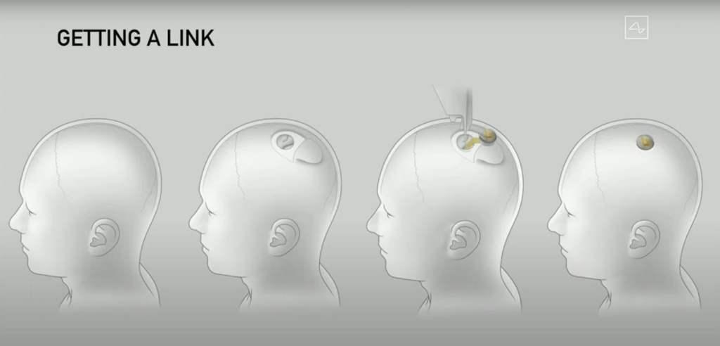 posición de Neuralink