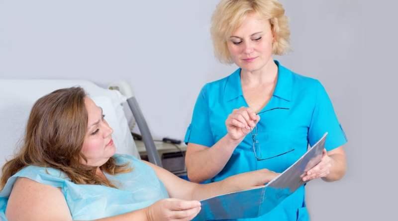 cirurgia bariatrica 3 - Cirurgia Bariátrica pelo SUS: Como funciona?