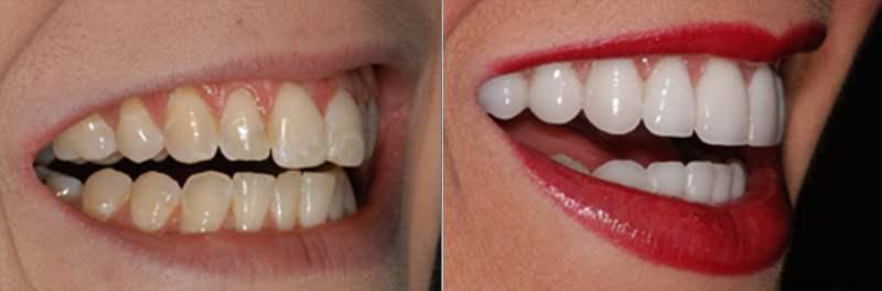 facetas de porcelana 6 - Facetas de porcelana: sorriso bonito sem aparelho!