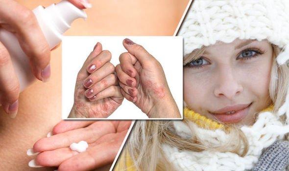 proteger pele - Como Proteger a sua Pele no Inverno: Veja Dicas e Truques!