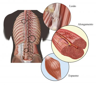 "DOR MUSCULAR 4 - ""Remédios Caseiros"" para Dor Muscular: veja como ter mais saúde!"