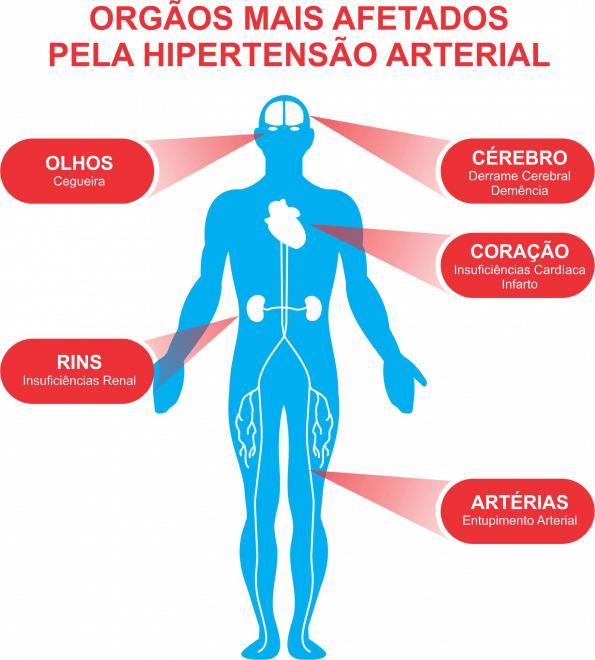 hiper 2 - Hipertensão: veja o que é e como tratar esse mal