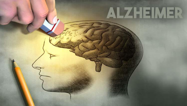 3 20 - O que é Alzheimer? Causas? Tratamento? Prevenção?