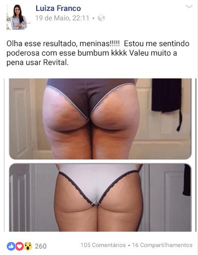 Fonte da Saude Revital depoimento Luiza Franco - Revital Funciona Memos? Como Acabei com a Celulite! - Segredo das Famosas!