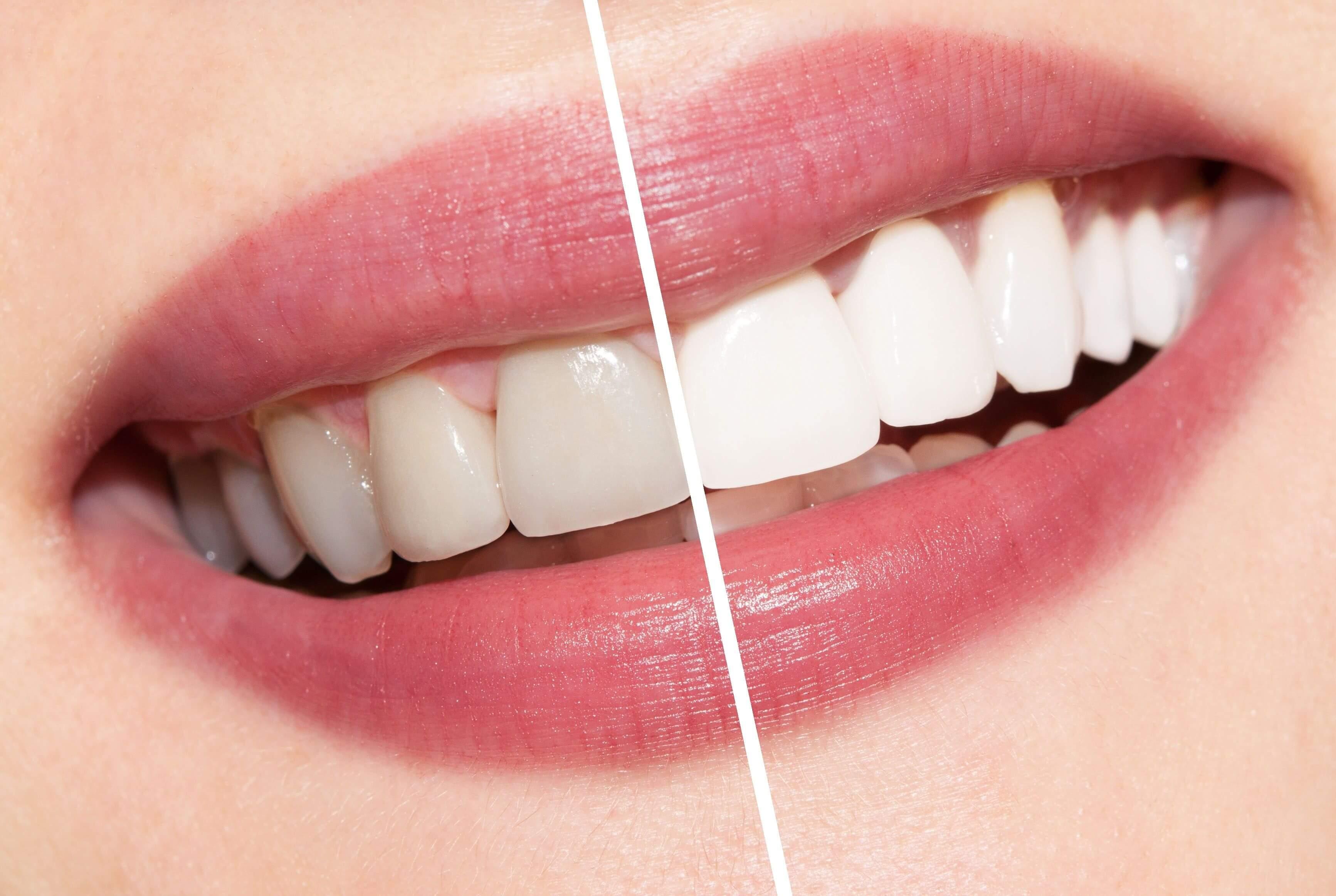 Beneficios Do Clareamento Dental Sorriso Bonito E Dentes Saudaveis
