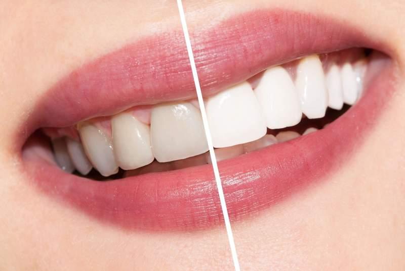 fonte da saude - Clareamento Dental Natural - dentes brancos