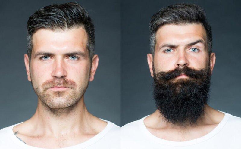 Barbeks ou brbeks antes de depois Tenha uma barba de lenhador com o Barbeks brbeks Como fazer a barba cresce 1024x633 - Brbeks - Como Deixar a Barba Crescer Bonita e Ficar como de Lenhador