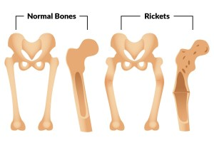 Bone Structure and Rickets