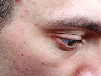 Dermatological disease acne pimples on the face of a man.