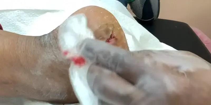 How To Heal Cracked Bleeding Heels