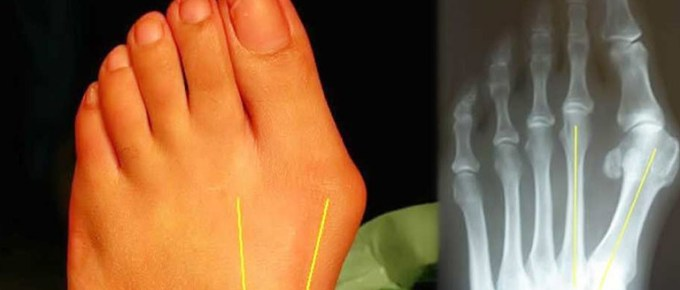 How To Get Rid of Bunions FI