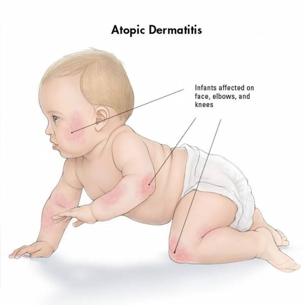 different eczematous dermatitis in babies