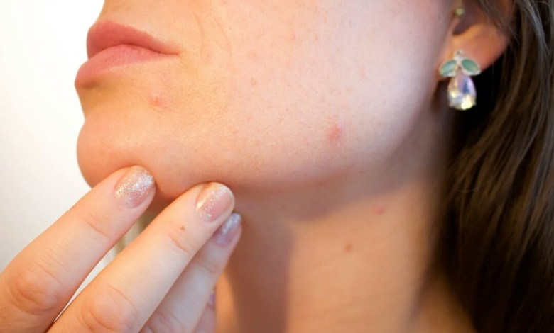 Photo of How to use a blackhead remover