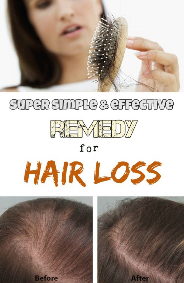 Super Simple And Effective Remedy For Hair Loss. Hair loss is a commom problem for many people due to many factors like hair styling tools, improper nutrition, harsh hair care products and others. The chemical and herbal remedies either work temporarily or do not work at all. Avoid chemical hair treatments as their harshness can further damage the hair, you can make this hair loss remedy in your home by using mustard oil and henna leaves.