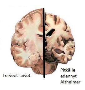 Eri muistisairaudet vaikuttavat elimellisellä tasolla eri tavalla. Alzheimer on muistisairauksista yleisin ja se johtaa hermosolujen kuolemaan ja aivokudoksen häviämiseen aivoista. Muutos vaikuttaa lähes kaikkeen aivotoimintaan ja tämän vuoksi niin kognitiiviset, emotionaaliset ja fyysiset ominaisuudet heikentyvät.
