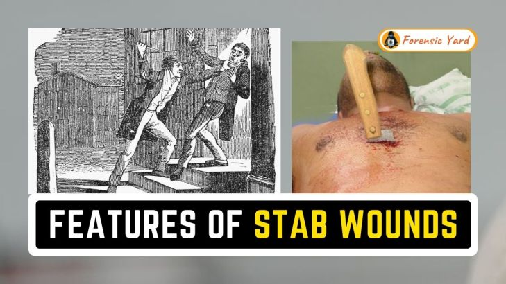 Features of Stab Wounds Forensic Yard (9)