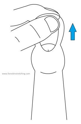 Frenulum Stretch Vector Drawing, showing distal stretching of the frenulum to assist the phimosis stretching process