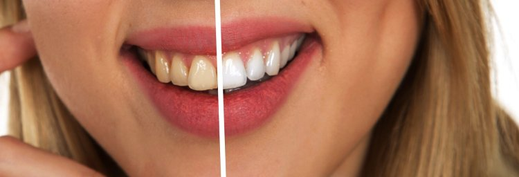Teeth whitening dental treatment at Forever Young Lounge, Lee on the Solent.