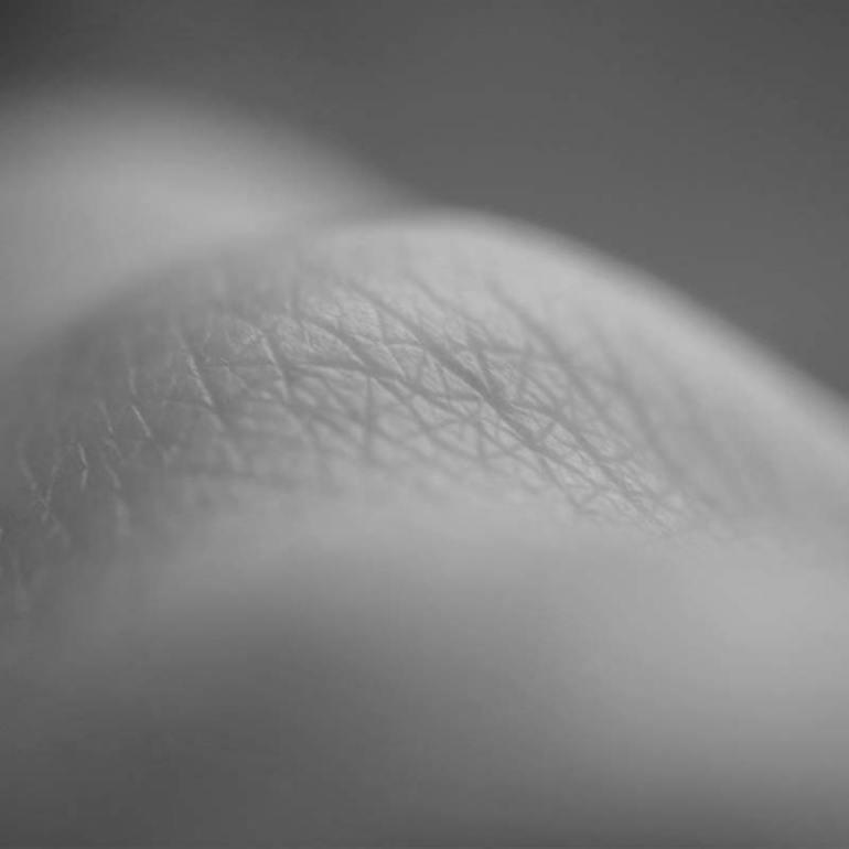 photo-skin2
