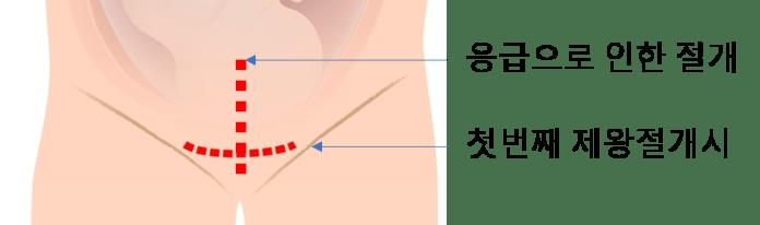 임신준비-제왕절개-흉터-십자.png